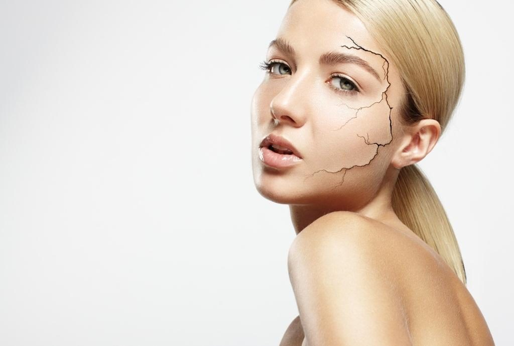 сухая кожа лица